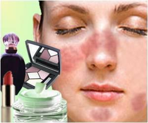 FastStoneEditor Bahan kosmetik penyebab alergi kulit
