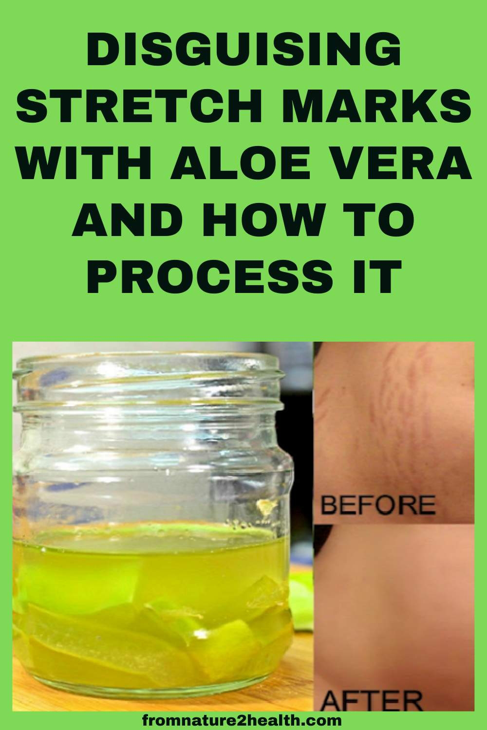 Disguising Stretch Marks With Aloe Vera and How to Process It