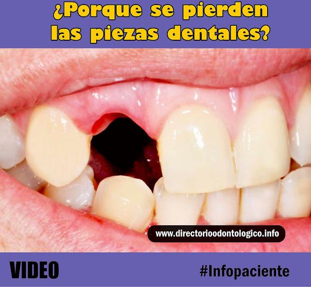 perdida-piezas-dentales