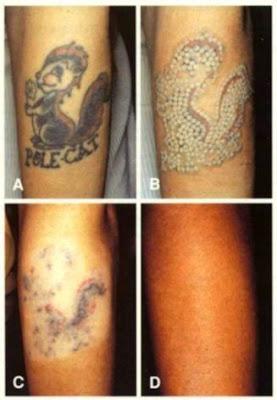 Tattoo Removal   Washington Institute of Dermatologic Laser Surgery
