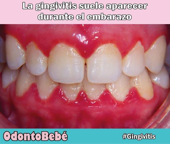 gingivitis-embarazo