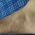 Petua Untuk mengatasi masalah gout