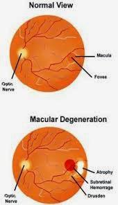 Vitamin Mata Untuk Degenerasi Makula