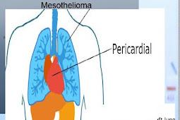 Pericardial Mesothelioma Communicating