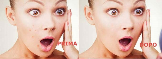 acne-brufoli-cerotto