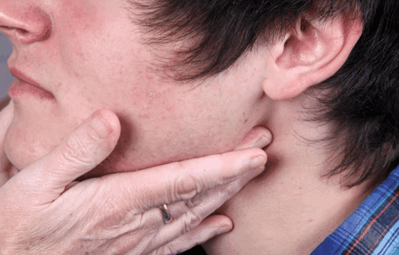Swollen Lymph Nodes Symptoms