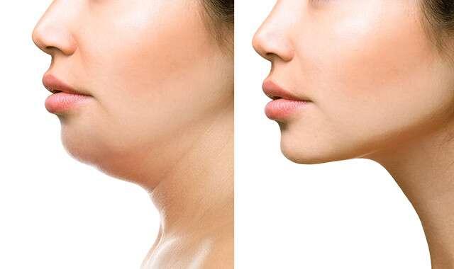 يمكن أن تقلل تمارين الوجه من ظهور الذقن المزدوجة