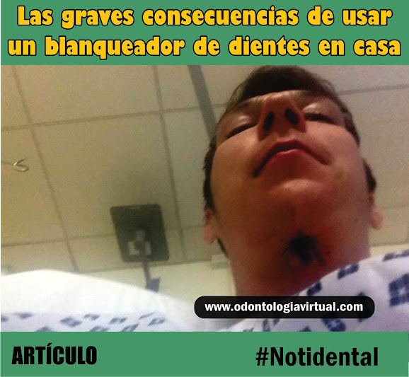 notidental-blanqueador-dental