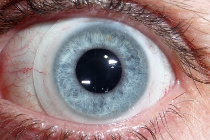 Why is there all the rage about Sclera Lenses