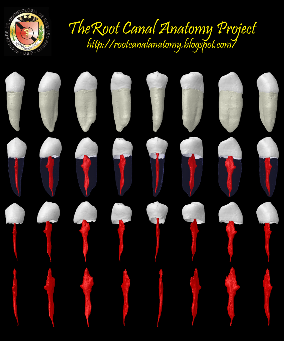 The Root Canal Anatomy Project: Mandibular Second Premolar