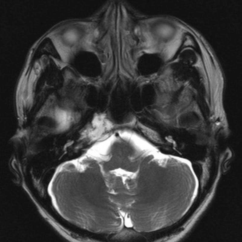 Chondrosarcoma of Petrous Apex