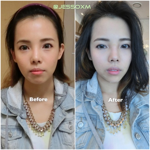 how to make cheeks thinner plastic surgery