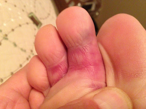 Tim's 'rainbow' broken toe on Saturday