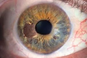 Pengobatan Herbal Penyakit Mata Alergi