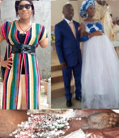 Woman's arm amputated after her husband allegedly butchered her arm and leg because he suspected her of infidelity (Graphic photos)