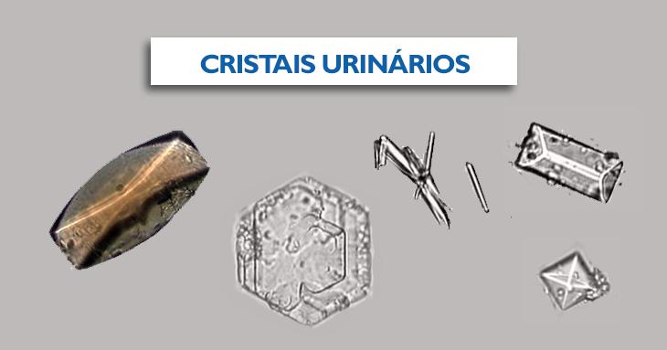 cristais urinários