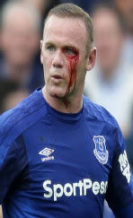 Rooney bloodied in Everton's win