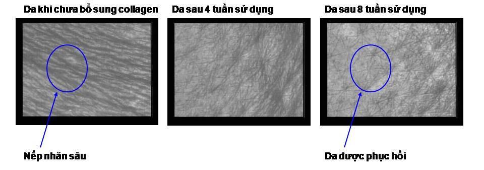 bo sung collagen