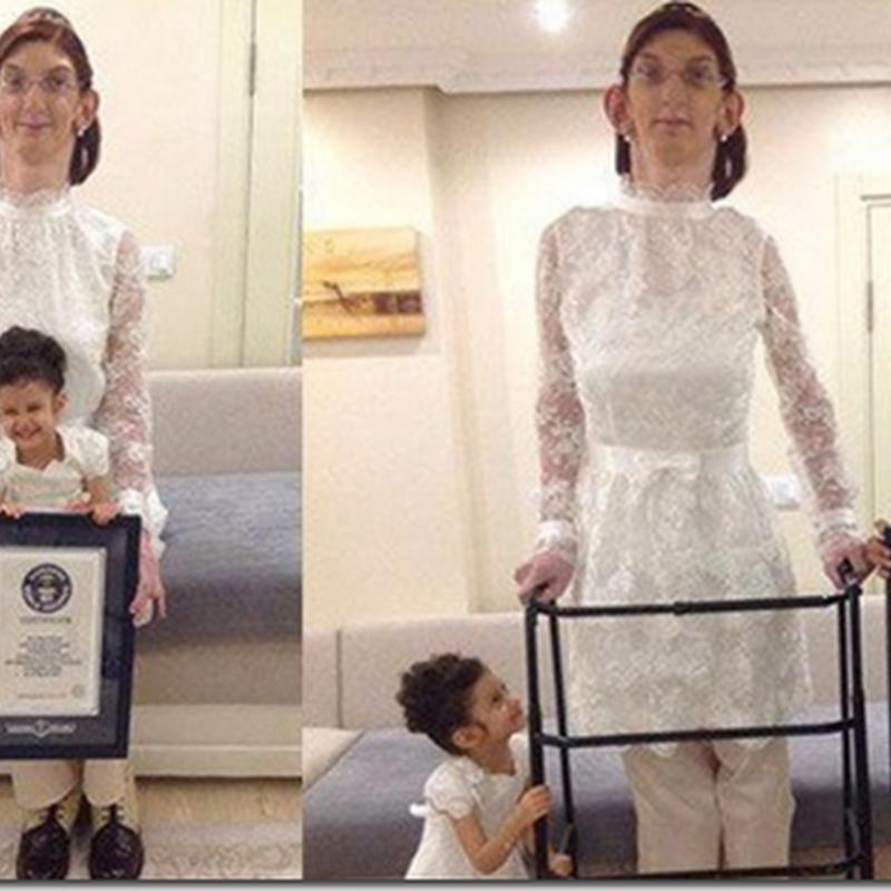Rumeysa Gelgi, la dificil vida de la adolescente más alta del lmundo