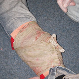 Casualty Care for Lifeboat Crew course – April 2011: emergency care bandage placed over open fracture