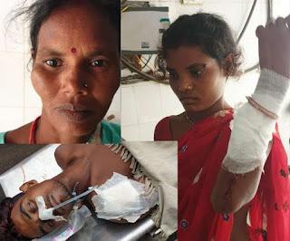 Bihar News:ससुराल में प्रताड़ित बहन को देखने आए भाई को चाकू मारा, स्थिति नाजुक