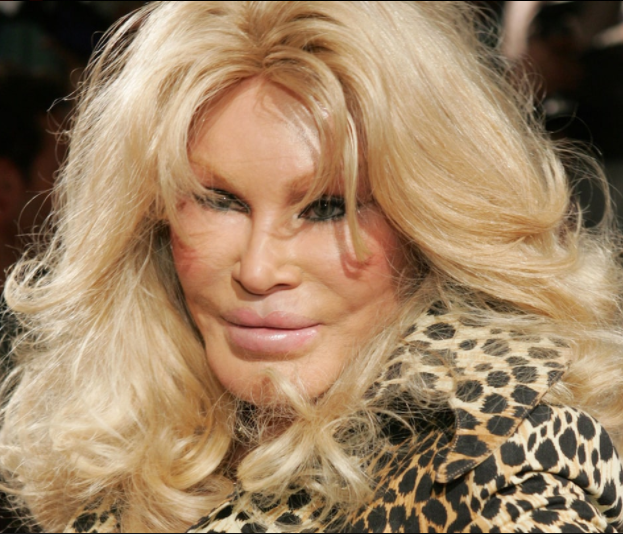 """See what """"Catwoman of Hollywood"""" looks like now, years after she went viral because of her feline facial features"""