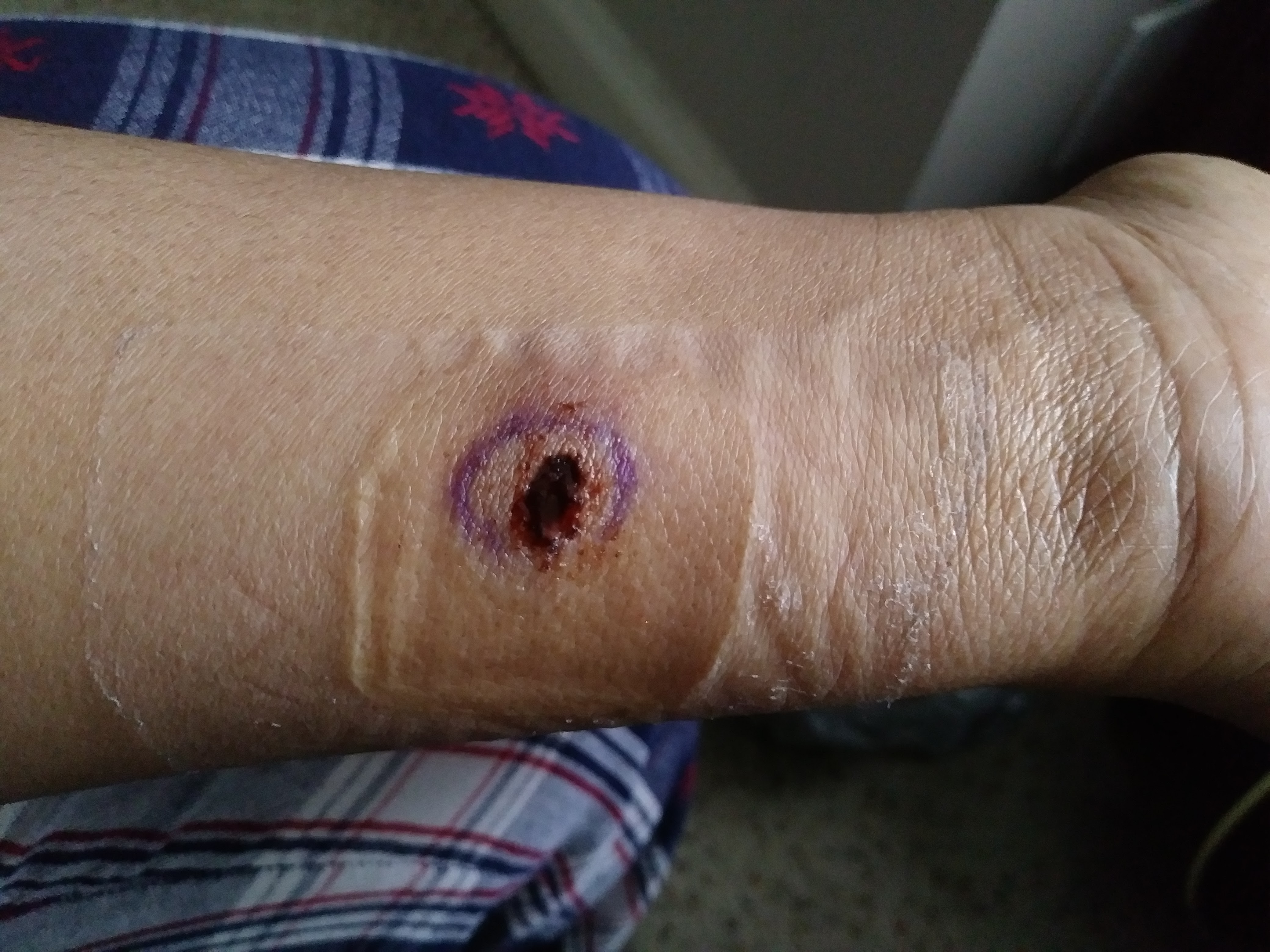 This is the way the punch biopsy looked the day after it was done. At this moment it looks a lot prettier. lol