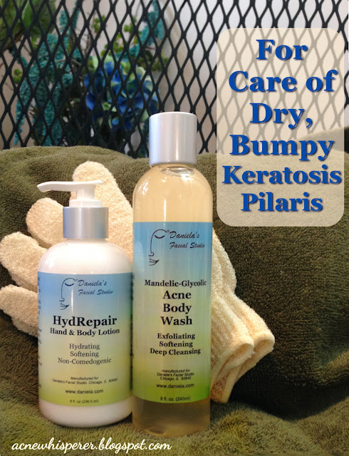These three products address the most common type of Keratosis Pilaris, or KP.  Nothing is more targeted!