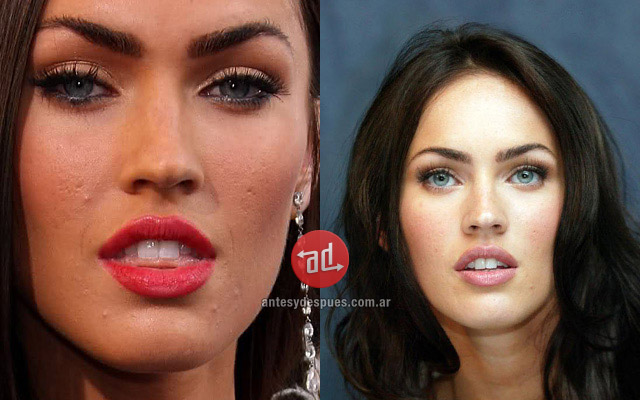 Photos of Megan Fox with acne