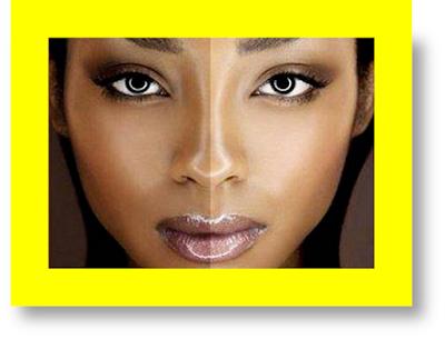 skin bleaching kidney disease can bleaching cream cause kidney failure can kidney disease cause skin discoloration does kidney disease cause skin discoloration can bleach cause kidney failure does kidney failure cause skin discoloration