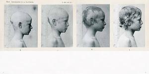 4 foto's van zelfde jongen op verschillende leeftijden