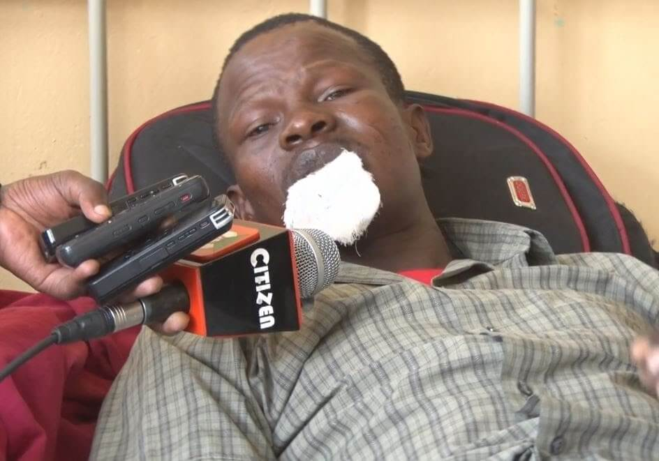 Man chopped off lips because of going to inlaws. PHOTO | NMG
