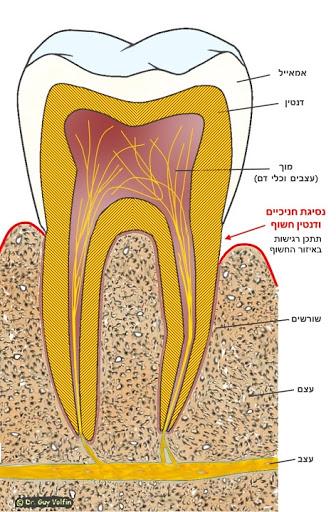 נסיגת חניכיים, שיניים רגישות, רגישות צווארית - דר גיא וולפין, אסתטיקה דנטלית
