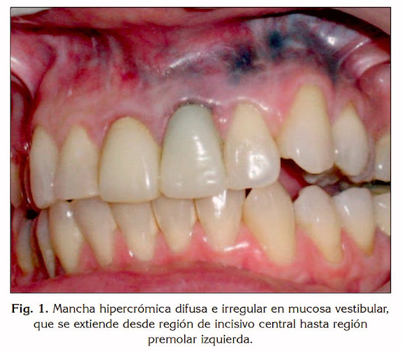 amalgama-dental