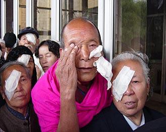 Post cataract surgery