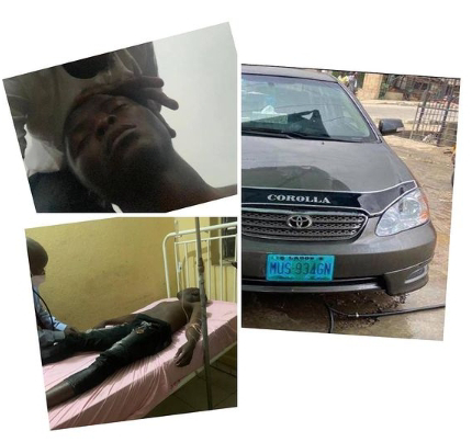 Bribe-seeking Police Officer tortures UNILAG Student to coma