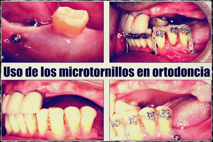 Microtornillos