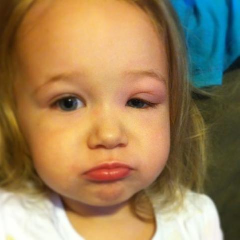 Seasonal Allergic Conjunctivitis - Pink Eye Due to Allergies