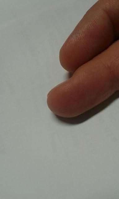Como o diabético deve dar a picada no dedo