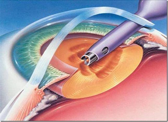 Cataract-Surgeries