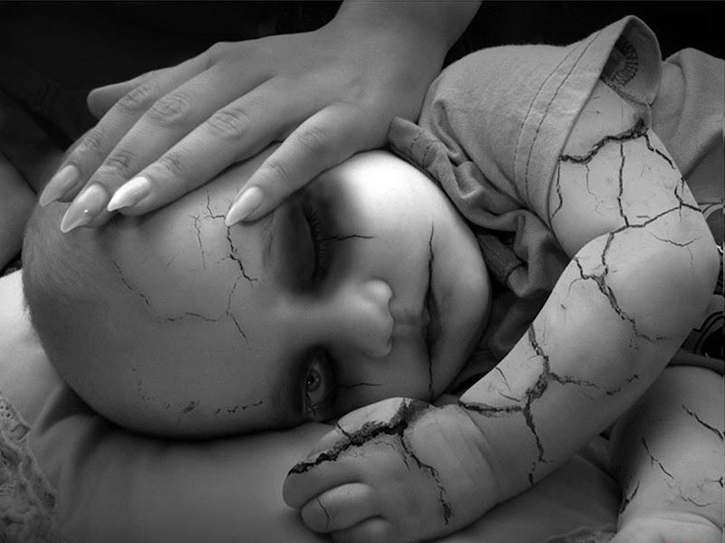 Brittle Skin Baby, Death