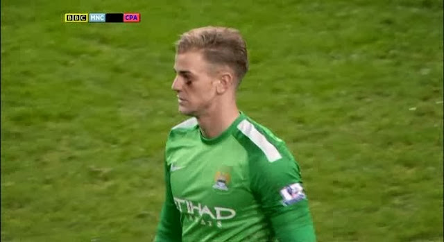 Joe Hart, Manchester City - Crystal Palace