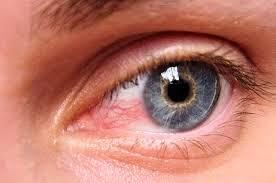 S.LUTENA Sembuhkan Toksoplasma Pada Mata