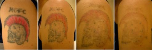 tattoo laser removal  20   Tattoo Design and