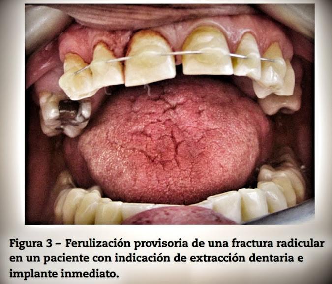 fracturas-radiculares