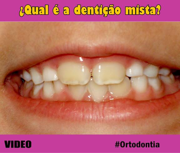 dentição-mista