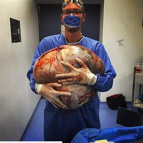 Giant 33kg ovarian serous cystadenoma!