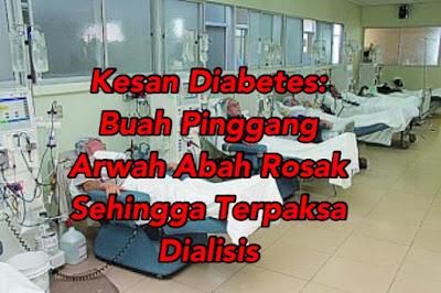 Prosedur dialisis buah pinggang
