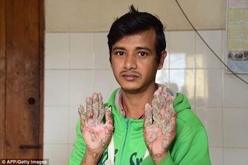 [PHOTOS] Meet The Man Called 'Tree Man' Whose Hands Grows Weird Trees
