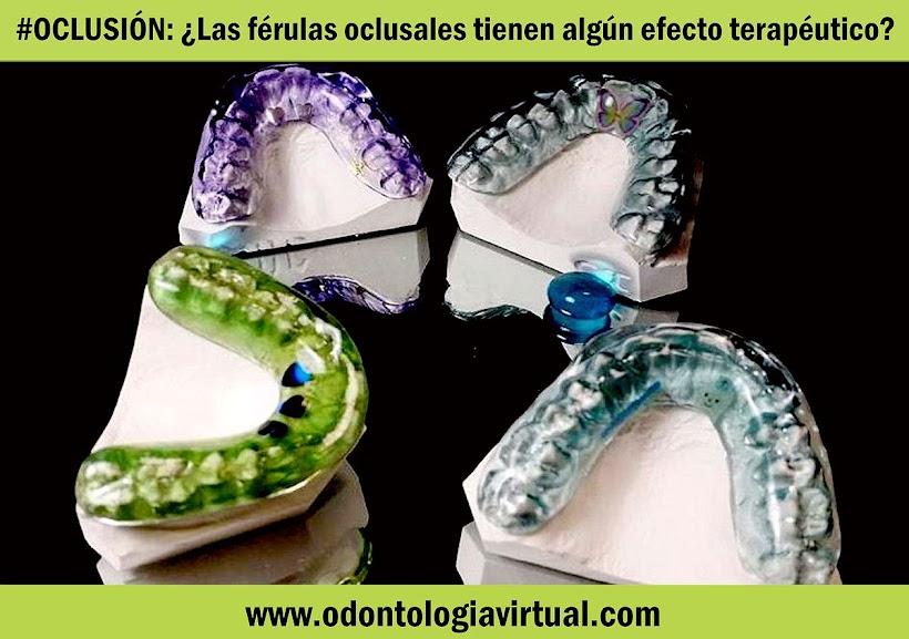 ferulas-oclusales